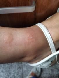 2020年5月11日老婆的脚在成都七医院上班时被不明虫子咬了